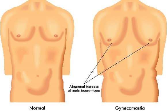 Gynecomastia Reviews